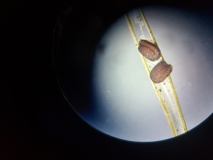 Seeds under microscope in pod